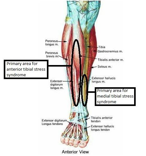 Tibial Stress Syndrome Shin Splints Accelerate Physiotherapy